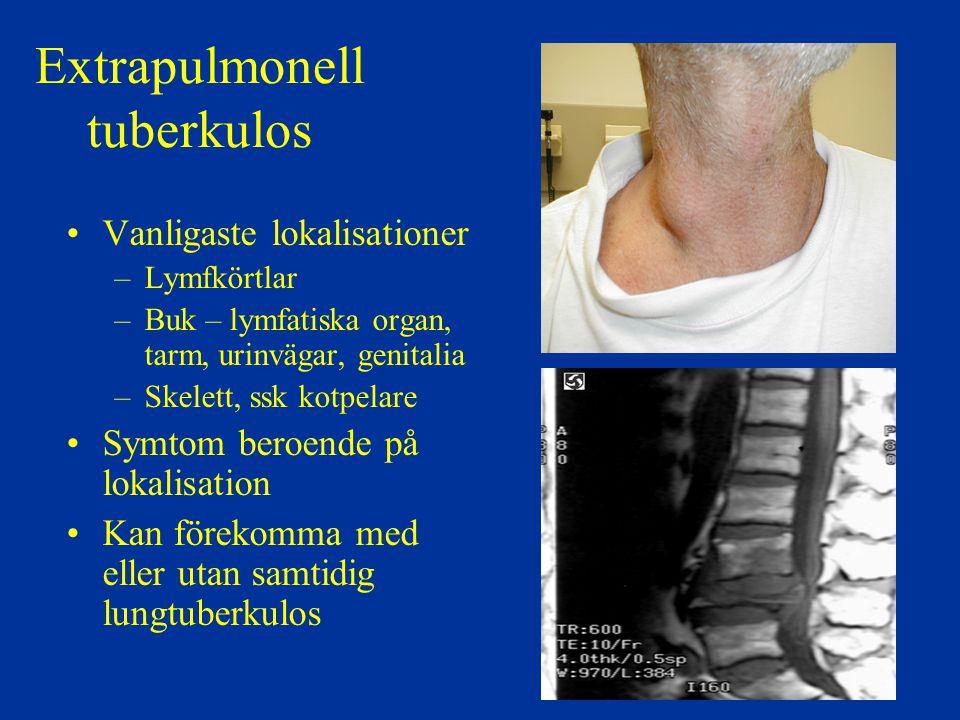 Extrapulmonell tuberkulos Vanligaste lokalisationer –Lymfkörtlar –Buk – lymfatiska organ, tarm, urinvägar, genitalia –Skelett, ssk kotpelare Symtom be