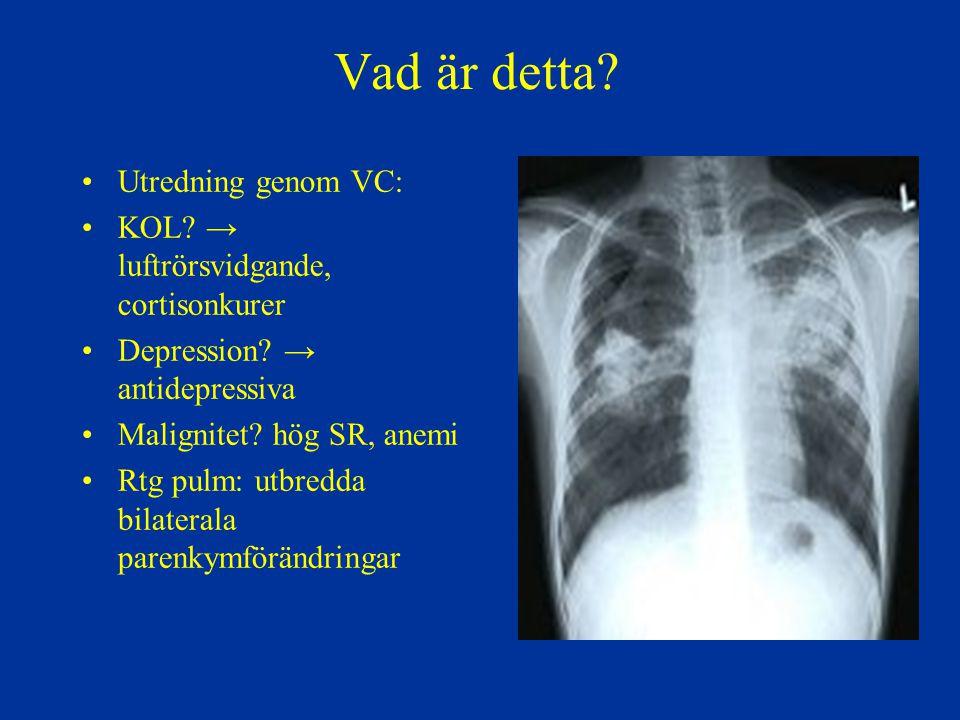 Symtom vid tuberkulos Beroende på organlokalisation, ålder och underliggande sjukdomar Vanliga symtom vid lungtuberkulos: –Långdragen hosta (>3 veckor) Kan vara produktiv eller torrhosta Blodtillblandning i sputa kan förekomma –Oklar feber, ofta låggradig och intermittent –Nattliga svettningar –Ofrivillig viktnedgång