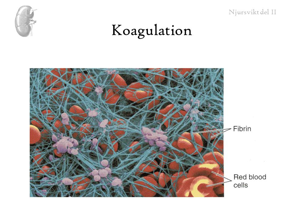 Njursvikt del II Koagulation