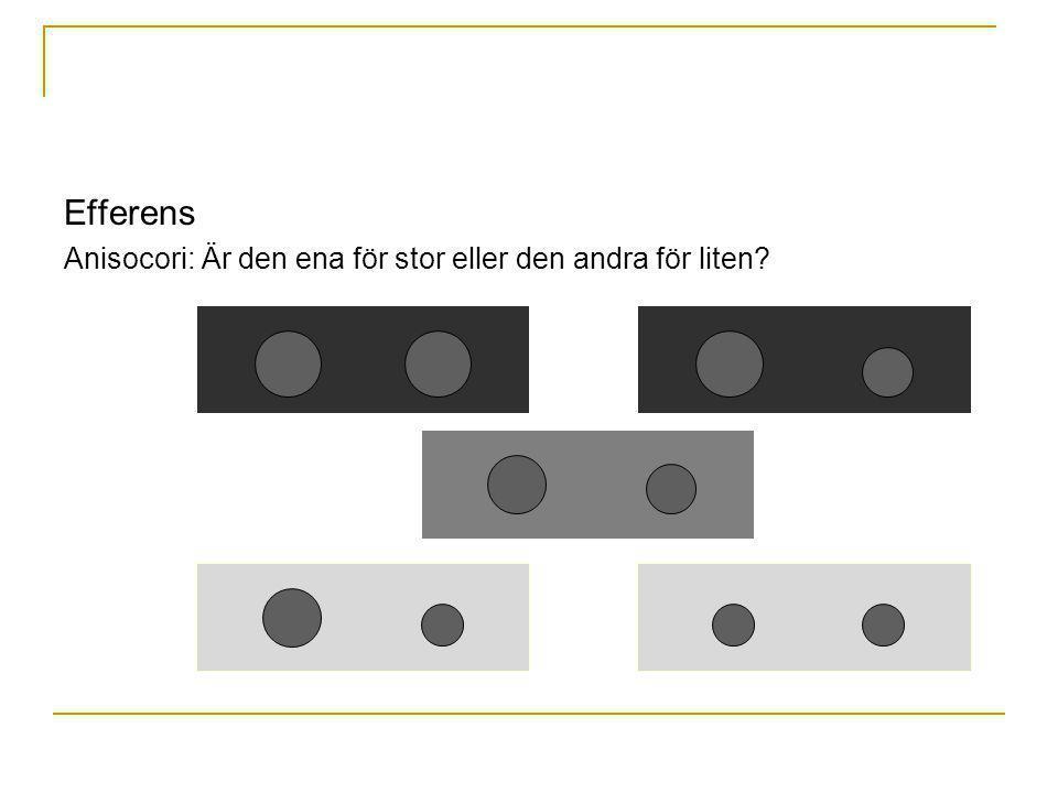 Efferens Anisocori: Är den ena för stor eller den andra för liten? Höger pupill för stor Vänster pupill för liten