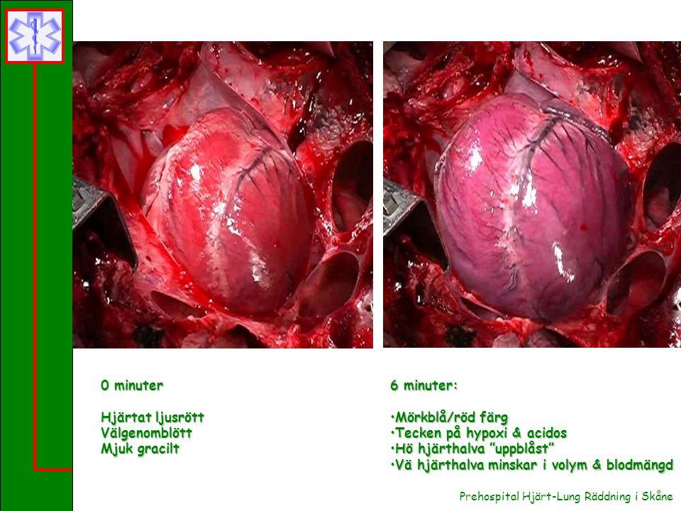 Prehospital Hjärt-Lung Räddning i Skåne 6 minuter: Mörkblå/röd färgMörkblå/röd färg Tecken på hypoxi & acidosTecken på hypoxi & acidos Hö hjärthalva uppblåst Hö hjärthalva uppblåst Vä hjärthalva minskar i volym & blodmängdVä hjärthalva minskar i volym & blodmängd 0 minuter Hjärtat ljusrött Välgenomblött Mjuk gracilt