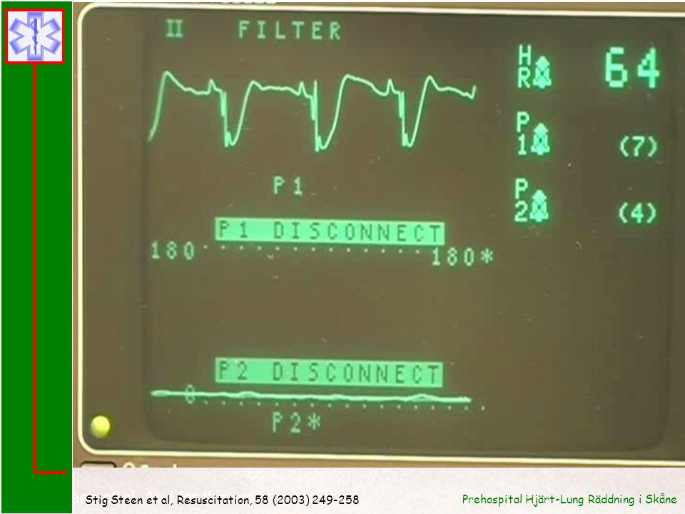 Stig Steen et al. Avd för thoraxkirurgi USiL Stig Steen et al, Resuscitation, 58 (2003) 249-258 Prehospital Hjärt-Lung Räddning i Skåne