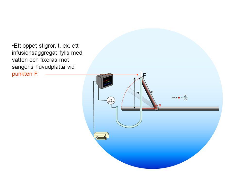 Ett öppet stigrör, t. ex. ett infusionsaggregat fylls med vatten och fixeras mot sängens huvudplatta vid punkten F. F