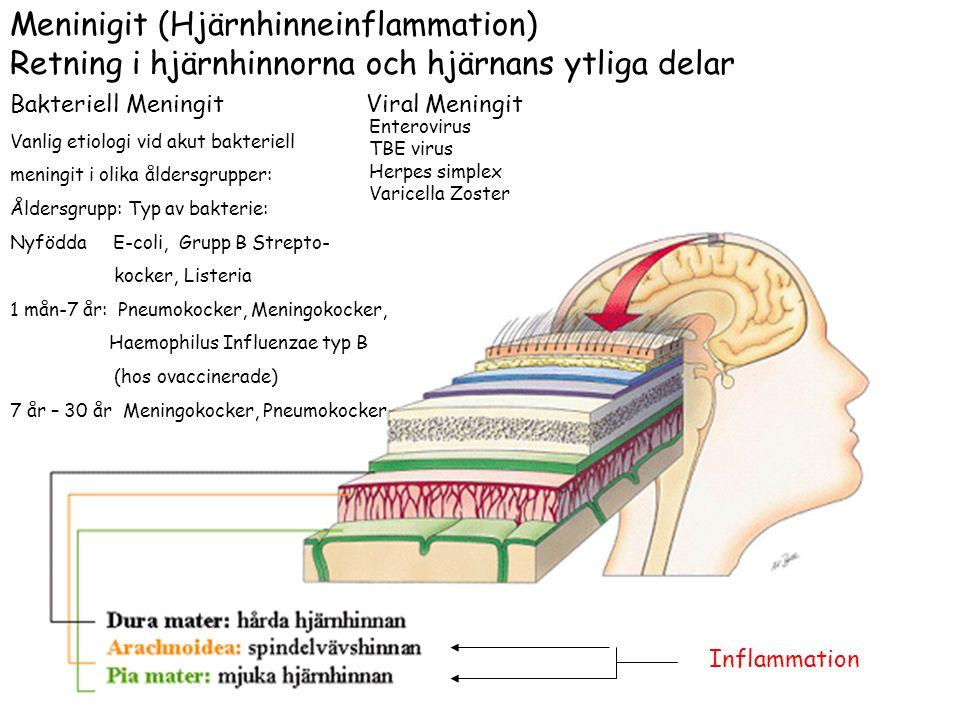 Meninigit (Hjärnhinneinflammation) Retning i hjärnhinnorna och hjärnans ytliga delar Bakteriell Meningit Viral Meningit Vanlig etiologi vid akut bakte