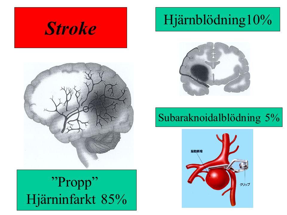 """""""Propp"""" Hjärninfarkt 85% Hjärnblödning10% Subaraknoidalblödning 5% Stroke"""