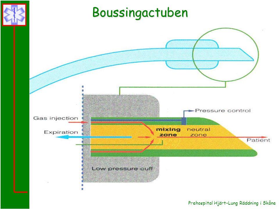 Boussingactuben