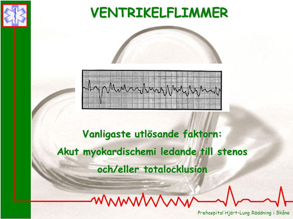 Prehospital Hjärt-Lung Räddning i Skåne VENTRIKELFLIMMER Vanligaste utlösande faktorn: Akut myokardischemi ledande till stenos och/eller totalocklusio