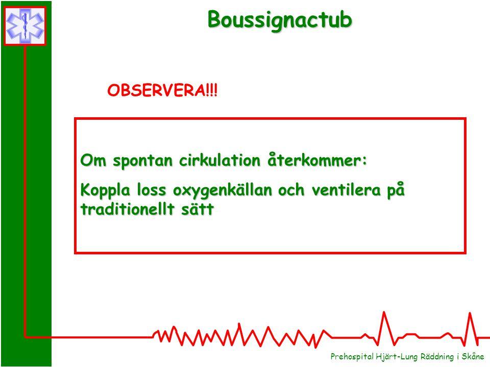 Prehospital Hjärt-Lung Räddning i Skåne Boussignactub Om spontan cirkulation återkommer: Koppla loss oxygenkällan och ventilera på traditionellt sätt OBSERVERA!!!