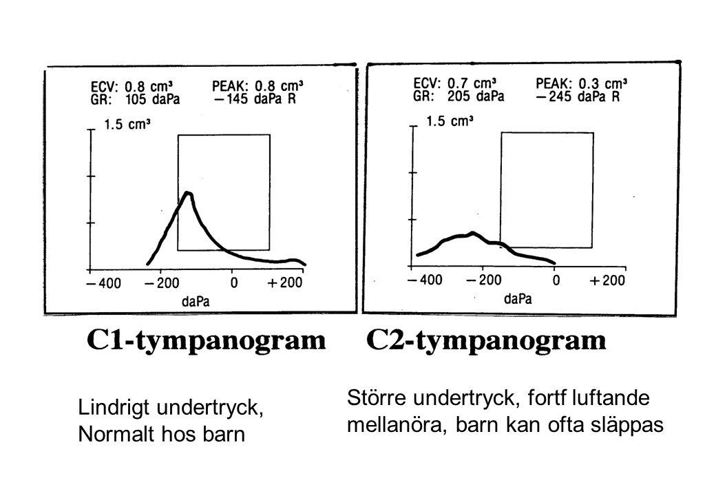 Hur ofta ger resistenta H.influenzae problem vid AOM.