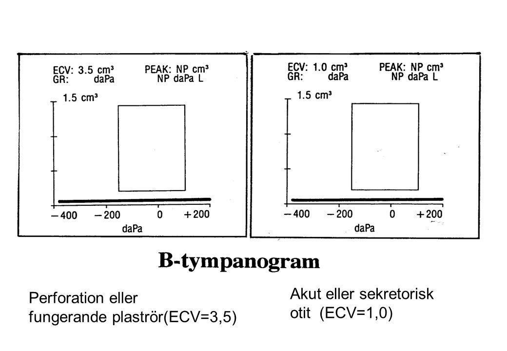 Perforation eller fungerande plaströr(ECV=3,5) Akut eller sekretorisk otit (ECV=1,0)