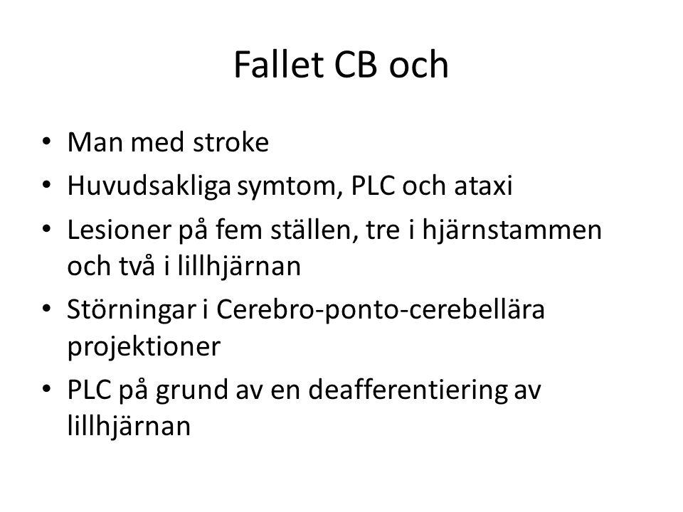 Fallet CB och Man med stroke Huvudsakliga symtom, PLC och ataxi Lesioner på fem ställen, tre i hjärnstammen och två i lillhjärnan Störningar i Cerebro-ponto-cerebellära projektioner PLC på grund av en deafferentiering av lillhjärnan