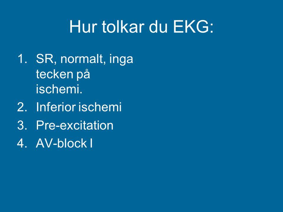 Hur tolkar du EKG: 1.SR, normalt, inga tecken på ischemi. 2.Inferior ischemi 3.Pre-excitation 4.AV-block I