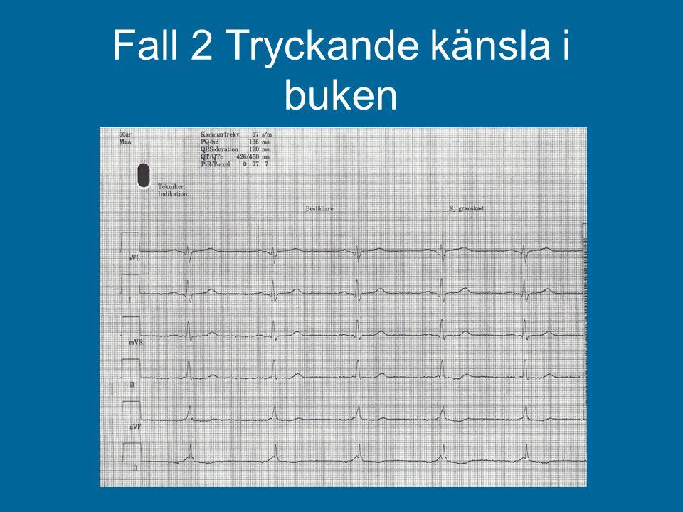 Hur tolkar du EKG: 1.SR, normalt, inga tecken på ischemi.