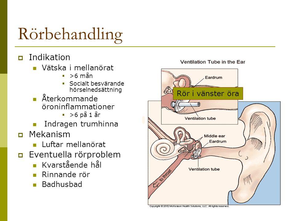 Rörbehandling  Indikation Vätska i mellanörat  >6 mån  Socialt besvärande hörselnedsättning Återkommande öroninflammationer  >6 på 1 år Indragen t