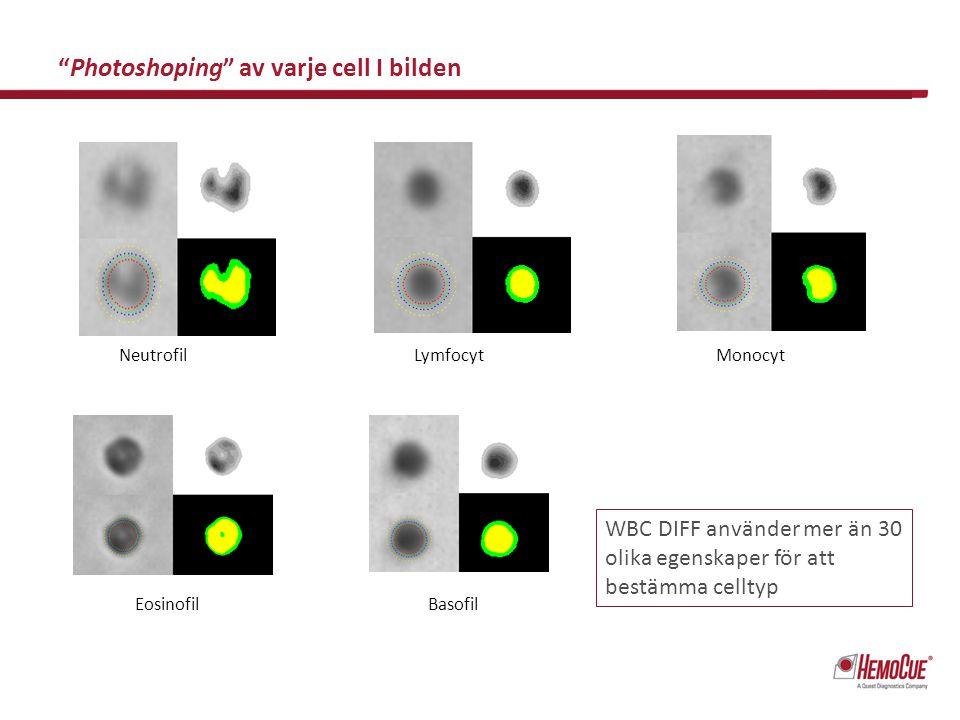 Sample with 87,5 % blast cells Sample with 25,0 % myelocytes and 4,3 % metamyelocytes WBC DIFF kan också identifiera and flagga patologiska vita blodkroppar!