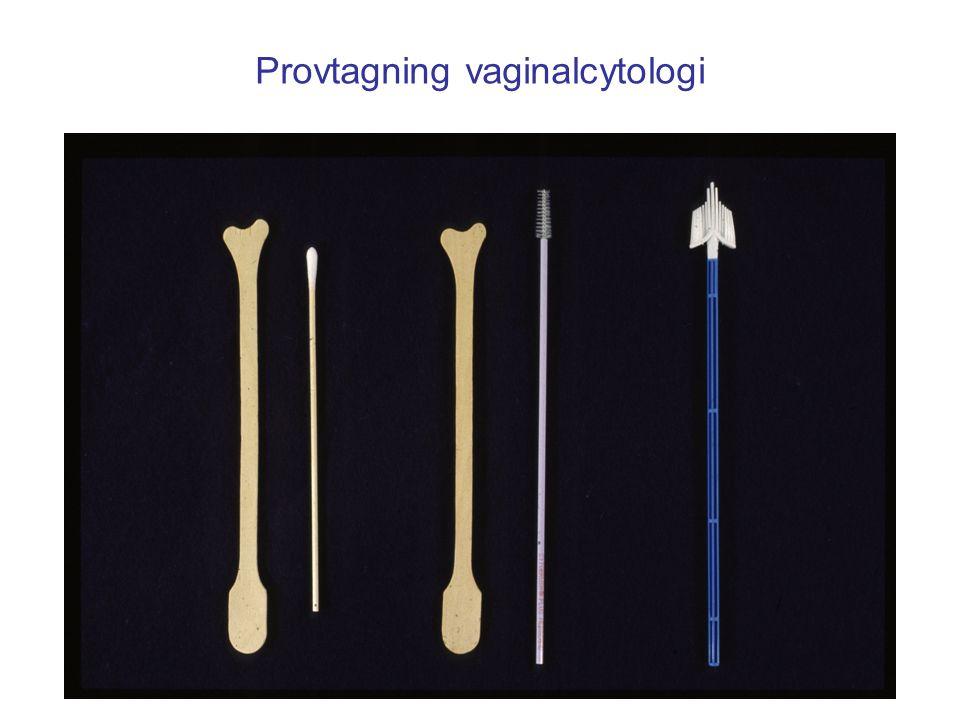 Provtagning vaginalcytologi