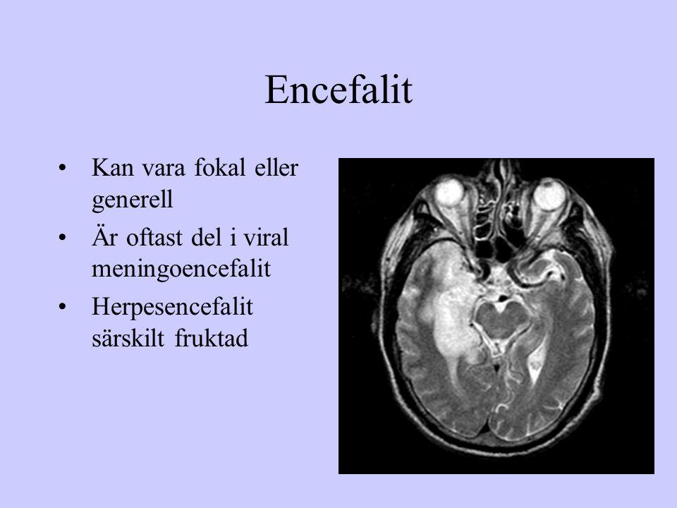 Encefalit Kan vara fokal eller generell Är oftast del i viral meningoencefalit Herpesencefalit särskilt fruktad