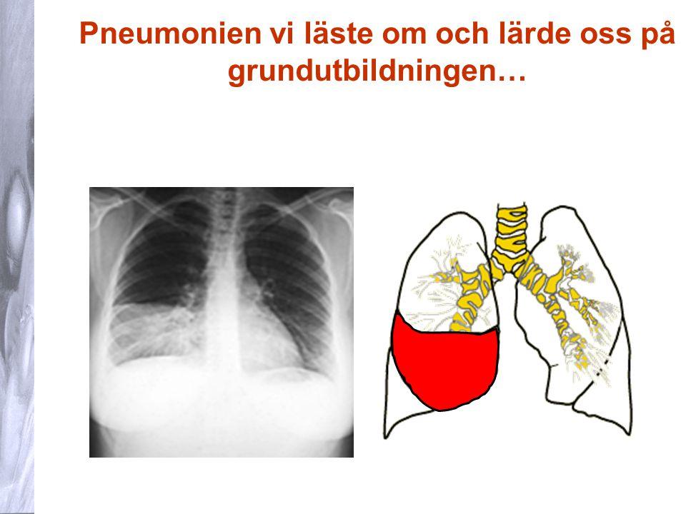 24 NLI hos barn Differentialdiagnostiska överväganden Övre luftvägsinfektion med hosta, förkylningssymtom som dominerande inslag.