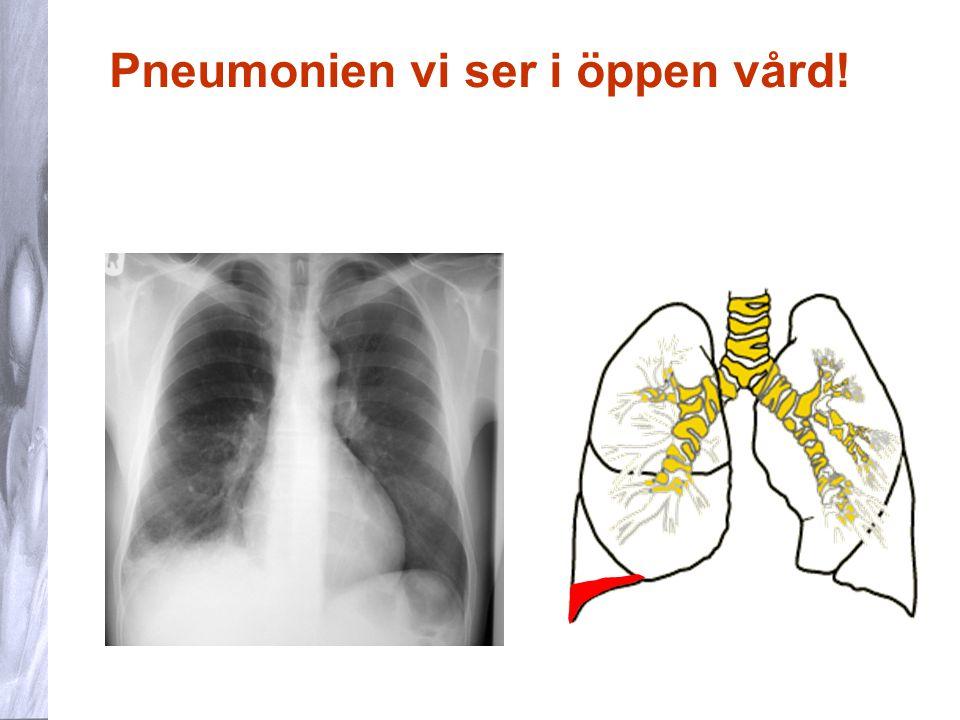 25 NLI hos barn När ska vi misstänka pneumoni hos barn 6 mån-6 år.