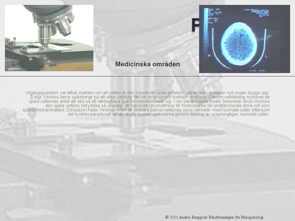 Patologi Utgångspunkten var alltså insikten om att cellen är den minsta levande enheten, varav alla vävnader och organ byggs upp. Enligt Virchow beror