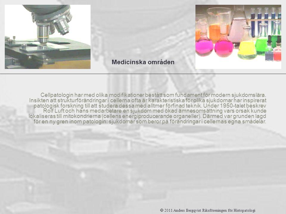 Patologi Cellpatologin har med olika modifikationer bestått som fundament för modern sjukdomslära. Insikten att strukturförändringar i cellerna ofta ä