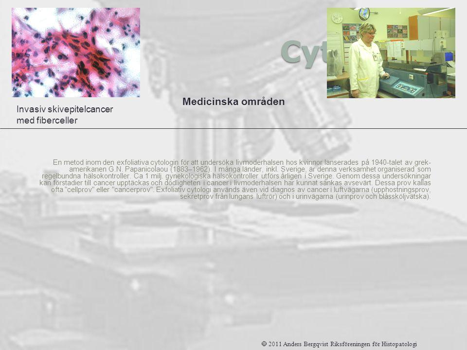 Cytologi En metod inom den exfoliativa cytologin för att undersöka livmoderhalsen hos kvinnor lanserades på 1940-talet av grek- amerikanen G.N. Papani
