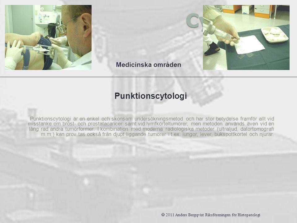 Cytologi Punktionscytologi är en enkel och skonsam undersökningsmetod och har stor betydelse framför allt vid misstanke om bröst- och prostatacancer s