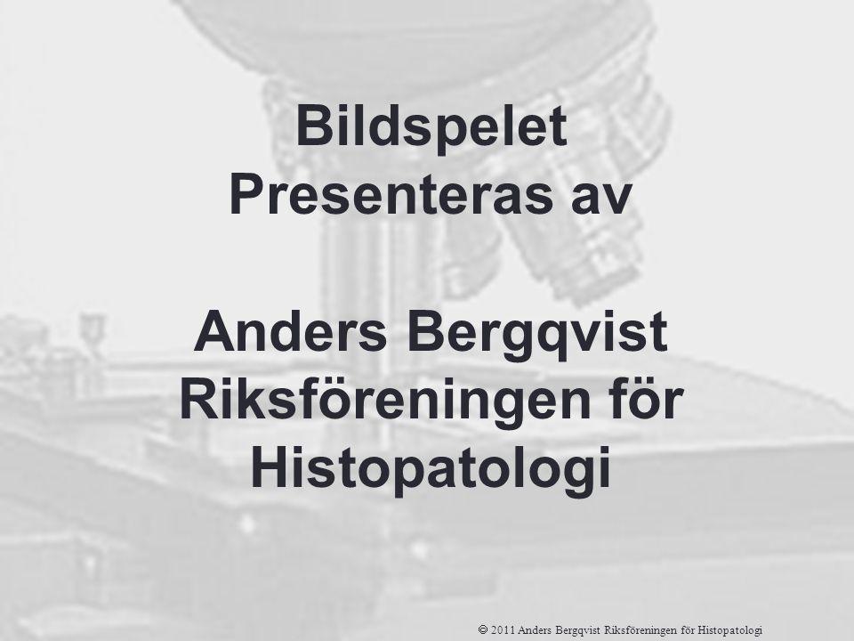 Bildspelet Presenteras av Anders Bergqvist Riksföreningen för Histopatologi  2011 Anders Bergqvist Riksföreningen för Histopatologi