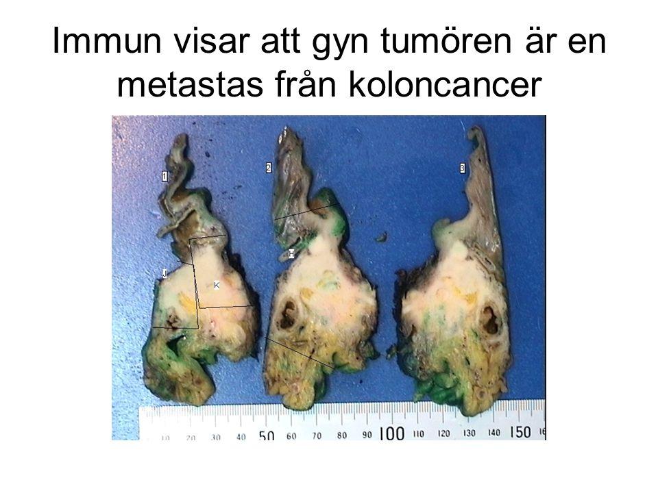 Immun visar att gyn tumören är en metastas från koloncancer