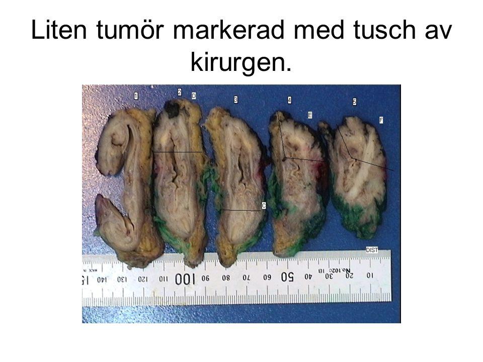 Liten tumör markerad med tusch av kirurgen.