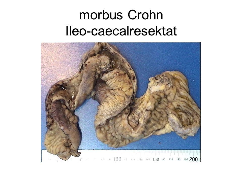 morbus Crohn Ileo-caecalresektat
