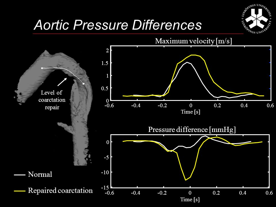 Aortic Pressure Differences -0.6-0.4-0.200.20.40.6 -15 -10 -5 0 Pressure difference [mmHg] Time [s] Normal Repaired coarctation 0.6 -0.6-0.4-0.200.20.4 0 0.5 1 1.5 2 Maximum velocity [m/s] Time [s] Level of coarctation repair