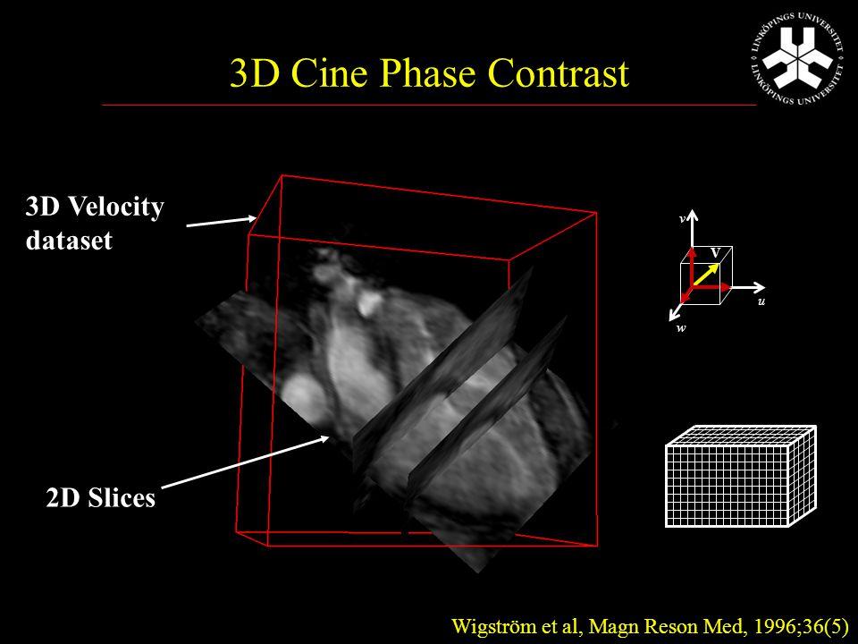 3D Velocity dataset 2D Slices Wigström et al, Magn Reson Med, 1996;36(5) 3D Cine Phase Contrast u w V v