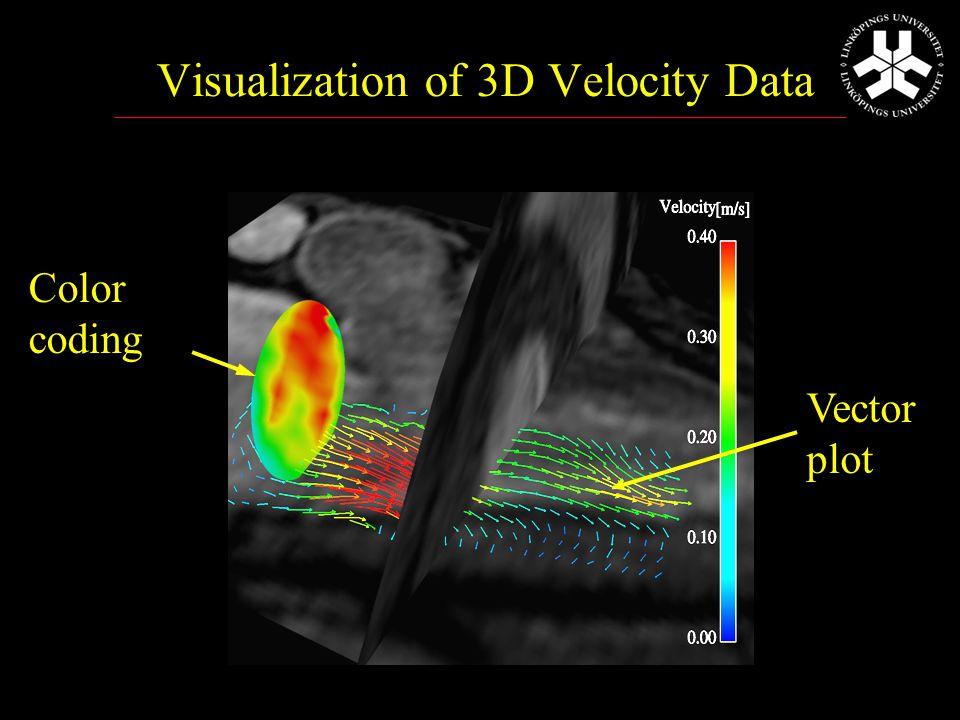 Vad kan 3D ultraljud tillföra? Volymsberäkningar