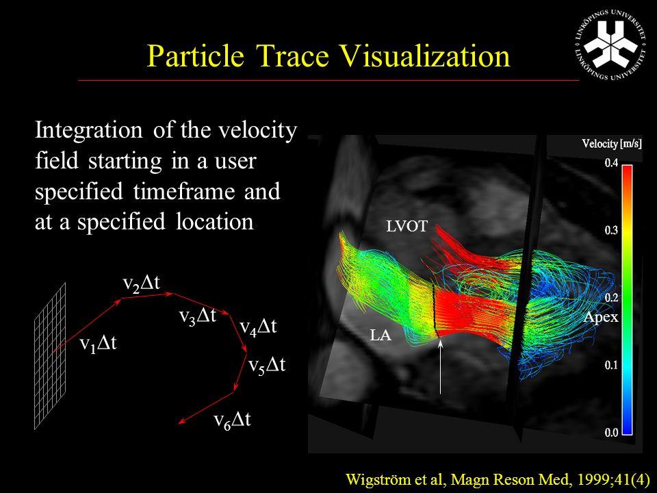 Volymsberäkning m 3D ultraljud