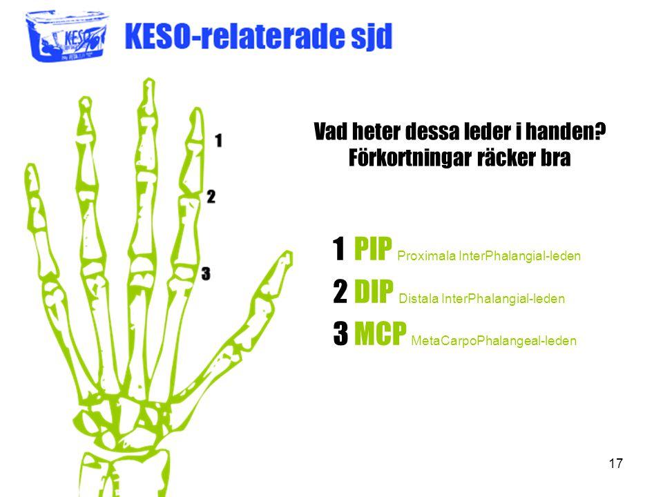 17 Vad heter dessa leder i handen? Förkortningar räcker bra 123123 PIP Proximala InterPhalangial-leden DIP Distala InterPhalangial-leden MCP MetaCarpo