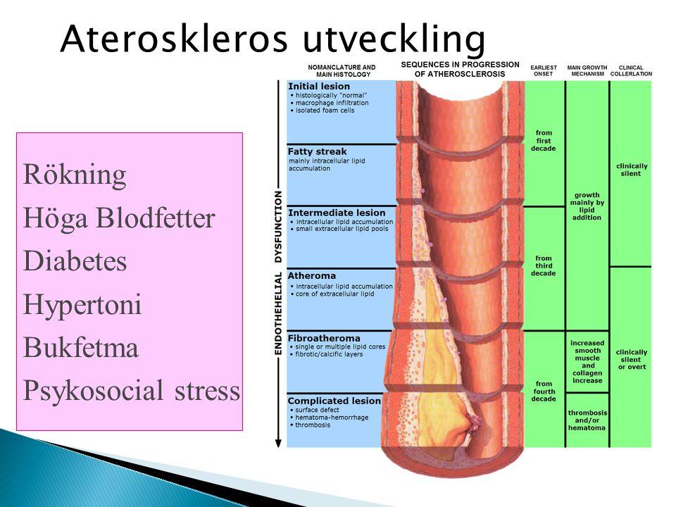 Ateroskleros utveckling Rökning Höga Blodfetter Diabetes Hypertoni Bukfetma Psykosocial stress