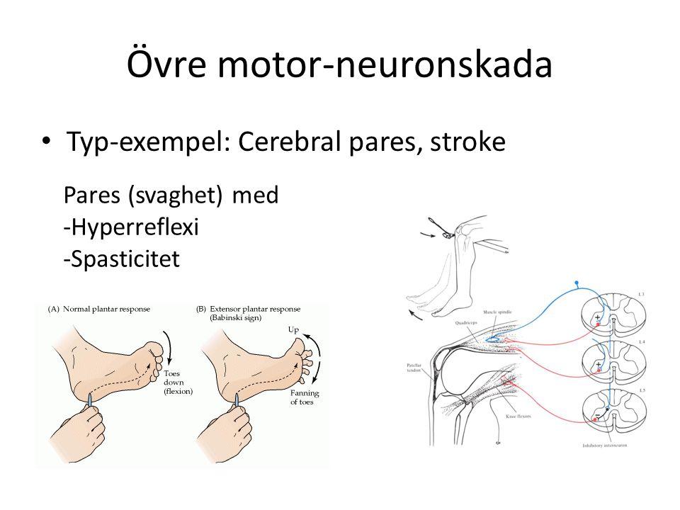 Övre motor-neuronskada Typ-exempel: Cerebral pares, stroke Pares (svaghet) med -Hyperreflexi -Spasticitet