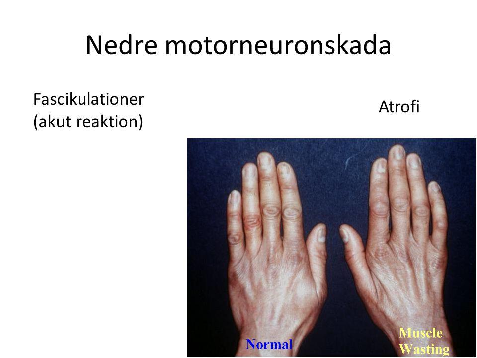 Nedre motorneuronskada Atrofi Fascikulationer (akut reaktion)