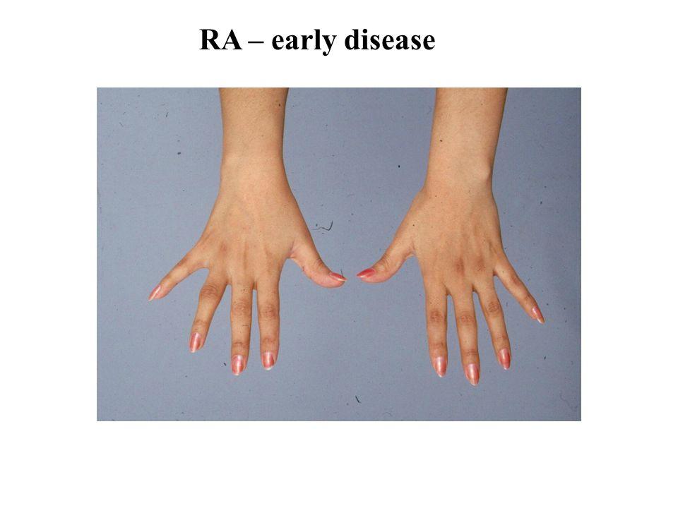RA – early disease