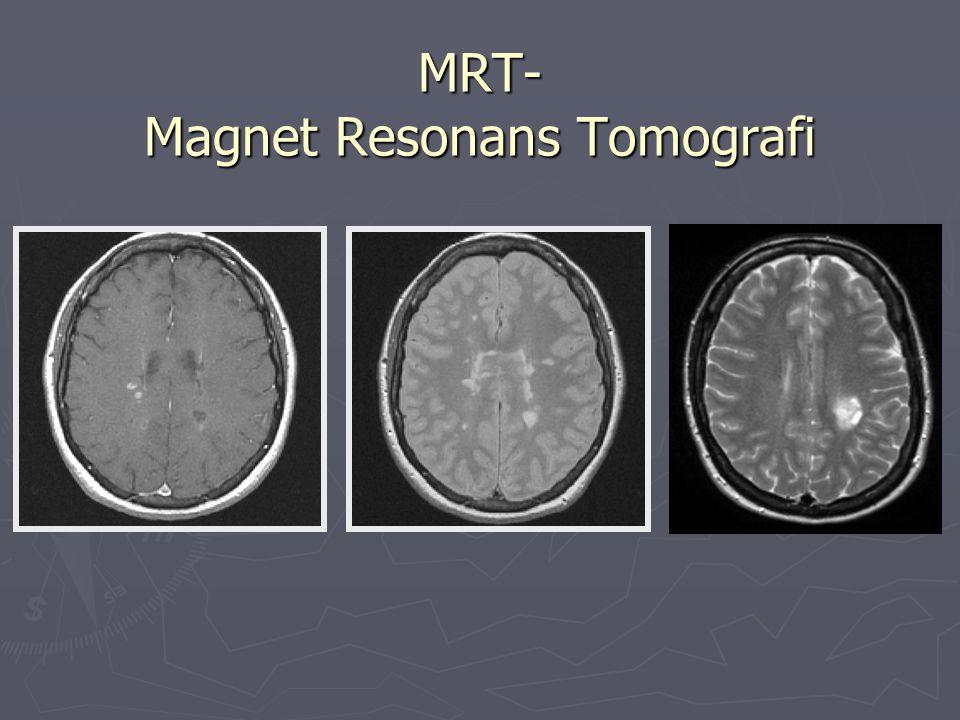 Behandling av MS Symptomatisk behandling Behandling av akut skov Kort steroidkur, som regel metylprednisolon 1 g x 1 i tre dagar.