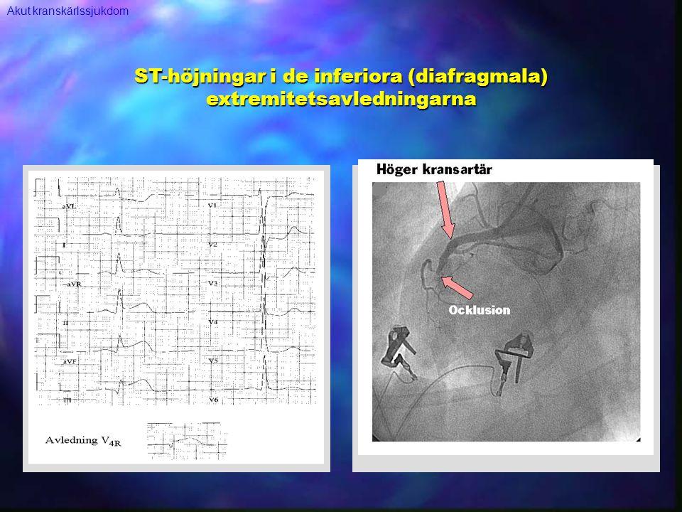 ST-höjningar i de inferiora (diafragmala) extremitetsavledningarna Akut kranskärlssjukdom