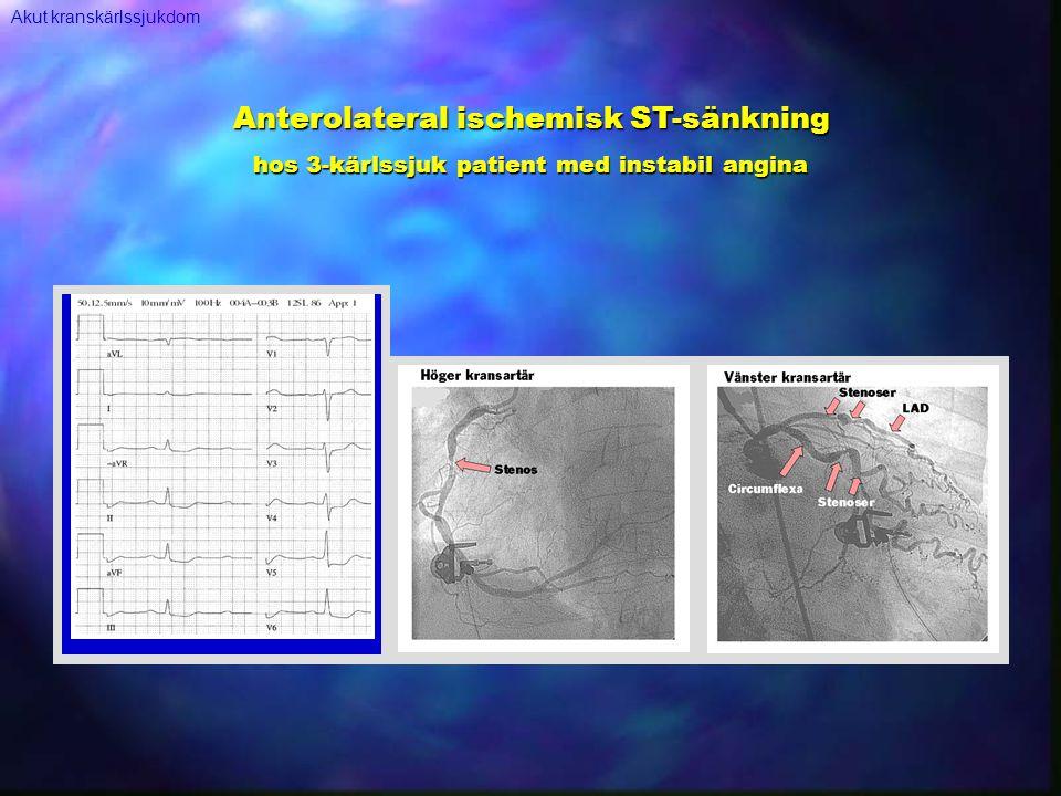 Anterolateral ischemisk ST-sänkning hos 3-kärlssjuk patient med instabil angina Akut kranskärlssjukdom