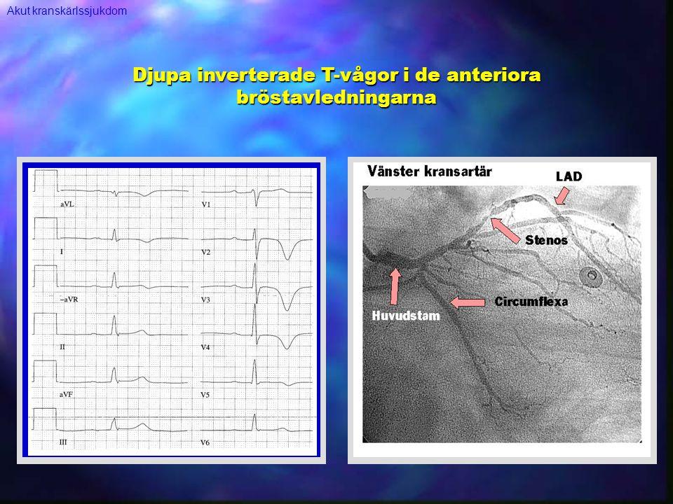 Djupa inverterade T-vågor i de anteriora bröstavledningarna Akut kranskärlssjukdom