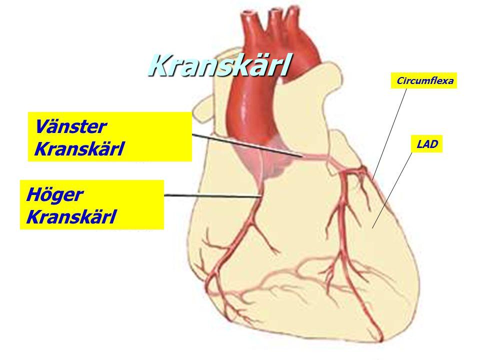 Tider n Ank sjukhus - PCI90 min n Ank patient - prehospitalt EKG 15 min n Prehospitalt EKG – PH lys 15 min n Ank patient – PH lys30 min n PH EKG- PCI70 min n Ank pat – PCI85 min