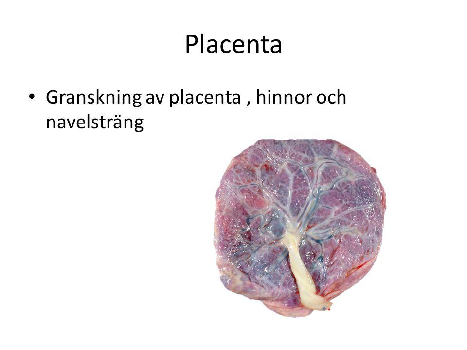 Placenta Granskning av placenta, hinnor och navelsträng