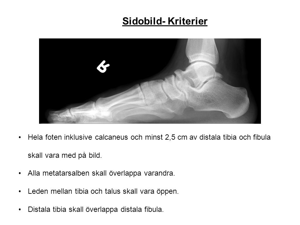 Sidobild- Kriterier Hela foten inklusive calcaneus och minst 2,5 cm av distala tibia och fibula skall vara med på bild. Alla metatarsalben skall överl