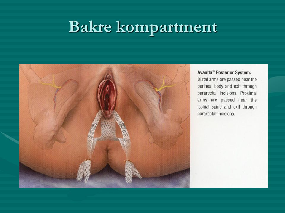 Bakre kompartment