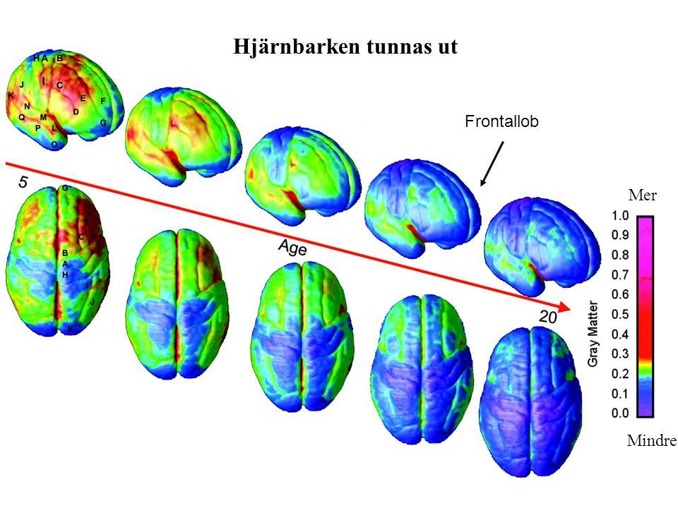 Frontallob Hjärnbarken tunnas ut Mer Mindre