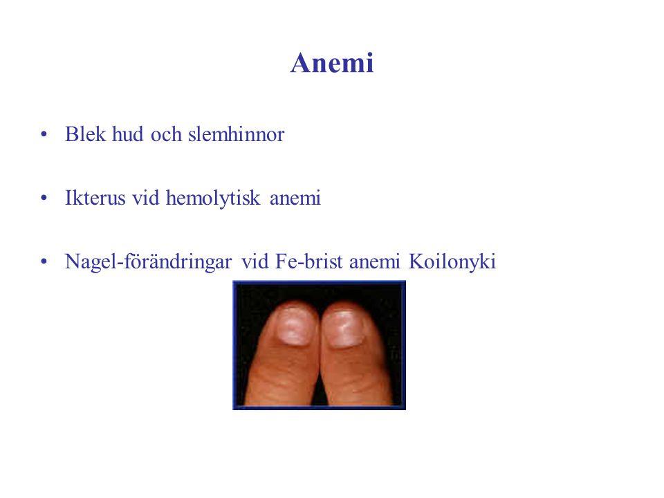 Anemi Blek hud och slemhinnor Ikterus vid hemolytisk anemi Nagel-förändringar vid Fe-brist anemi Koilonyki